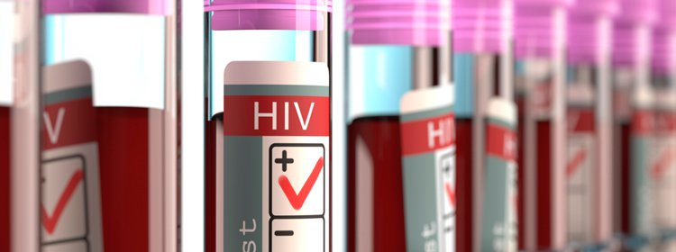12 Early Signs of HIV Infection You Shouldn't Ignore