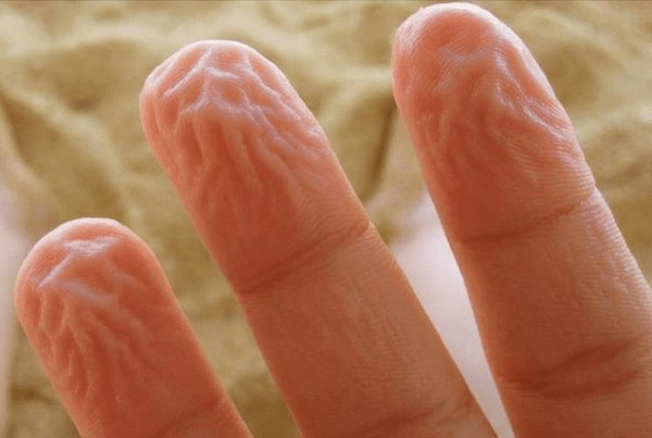 Main causes of pruney fingers